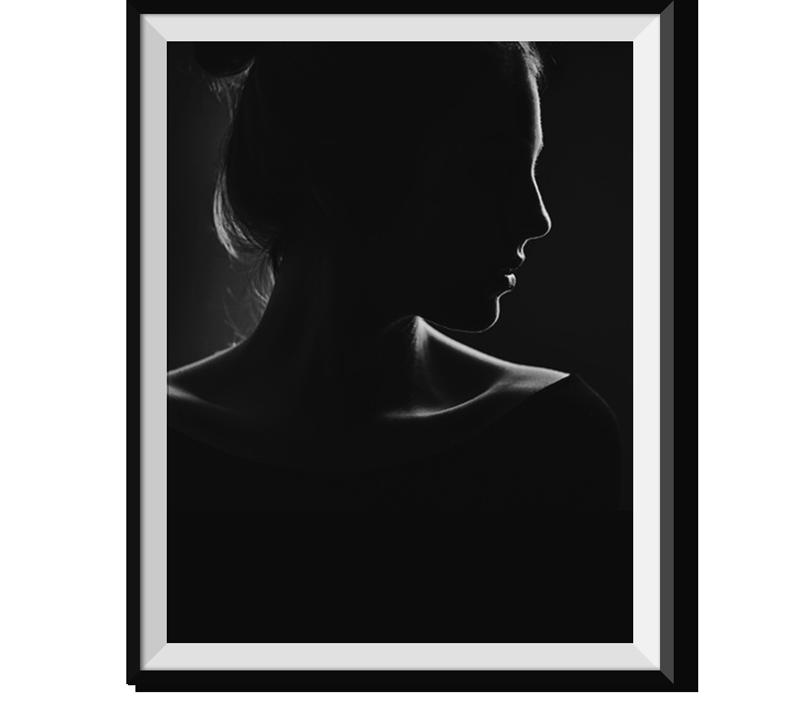 microlipo-frame